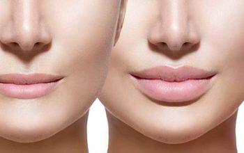 Что нужно знать о процедуре увеличения губ: правила и подготовка